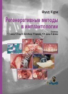 Регенеративные методы в имплантологии