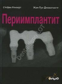 Периимплантит. Стефан Ренверт