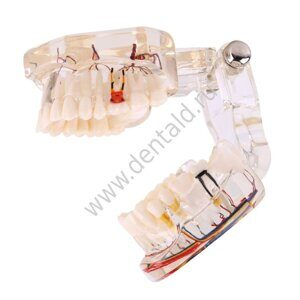 dental-model-innervation-1.jpg