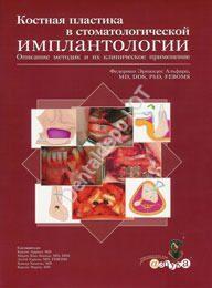 Костная пластика в стоматологической имплантологии.