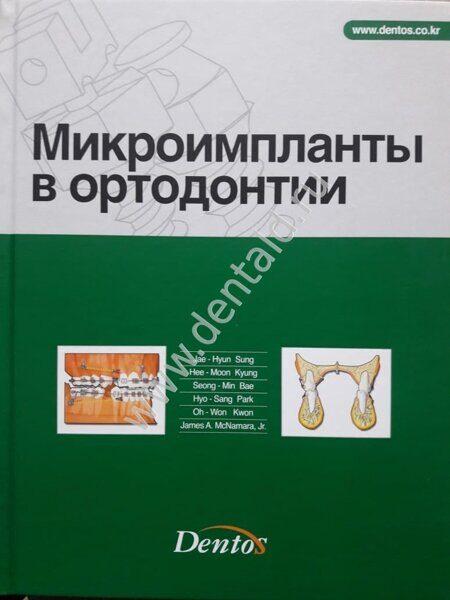 mikroimplanty_v_ortodontii_jae-hyun_sung.jpg