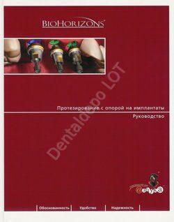 Протезирование с опорой на имплантаты